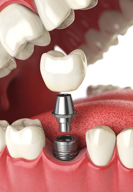 A dental implant diagram