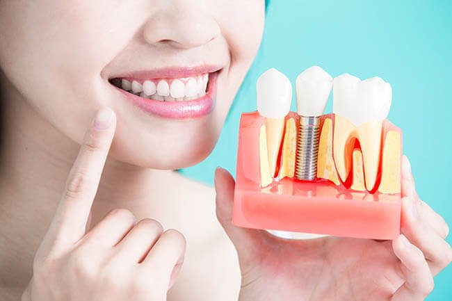 photo of a dental implant model